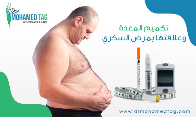عملية تكميم المعدة وعلاقتها بمرض السكري و هل يمكن للحامل القيام بها
