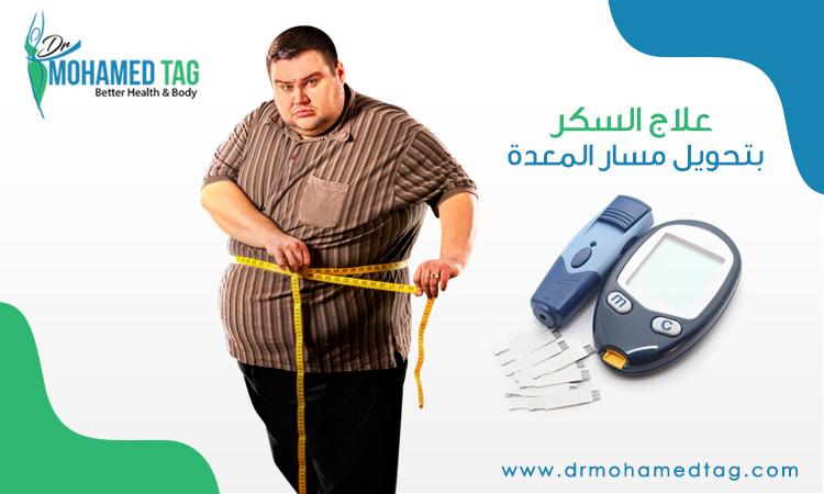 علاج السكر بتحويل مسار المعدة